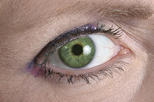 Lutein is believed to be important for eye health.